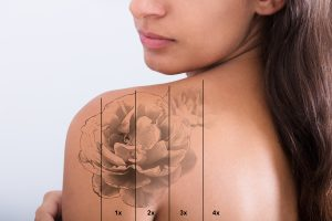 The Rise of Tattoo Removal